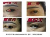 Bio Aquacel Eye Drop 万灵清基护眼水(100% original with QR CODE)