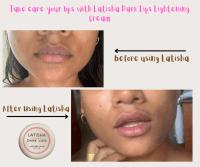 Latisha Dark Lips Lightening Cream