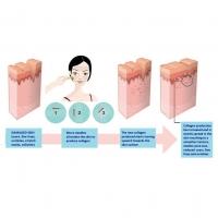 READY STOCK] TERAPI KULIT MUKA MENGGUNAKAN JARUM HALUS/ Microneedle Scar Derma Roller Dermaroller Micro Needle Skin Care