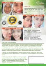 Asuka Acne Gel (effective on acne, pimples, blackheads)